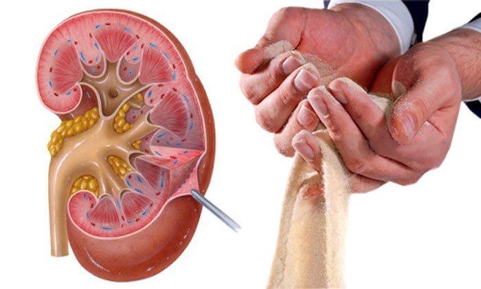 7 Dinge, die Ihre Nieren beschädigen können! – GIDASI TESI GESUNDHEIT